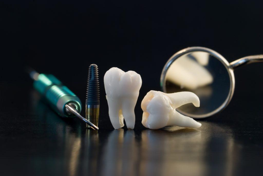 Ratunek po utracie zęba
